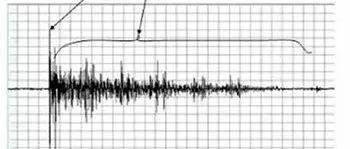声学基础|混响与扩散的基本理论